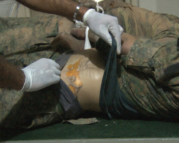 Chemical-weapon-used-by-ISIS-in-Kobane-July-2014-24